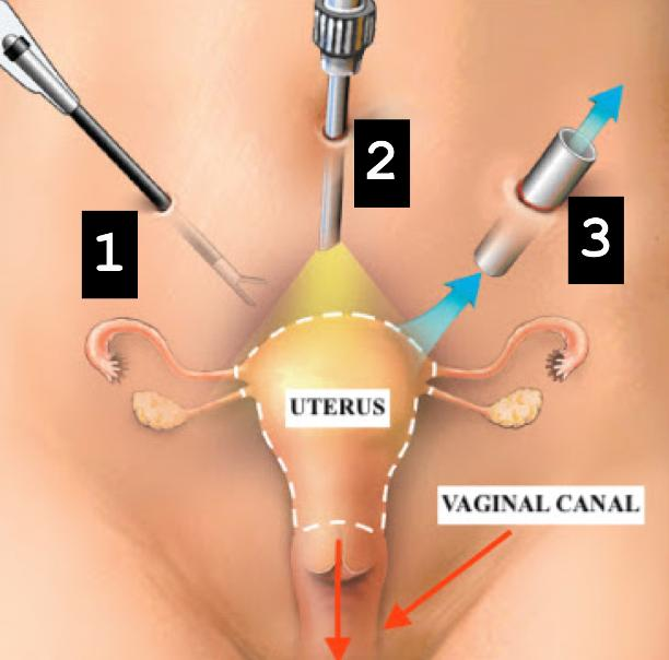 Page 24 of The Utilization of Magnets in Laparoscopic Uterine Prolapse Repairs