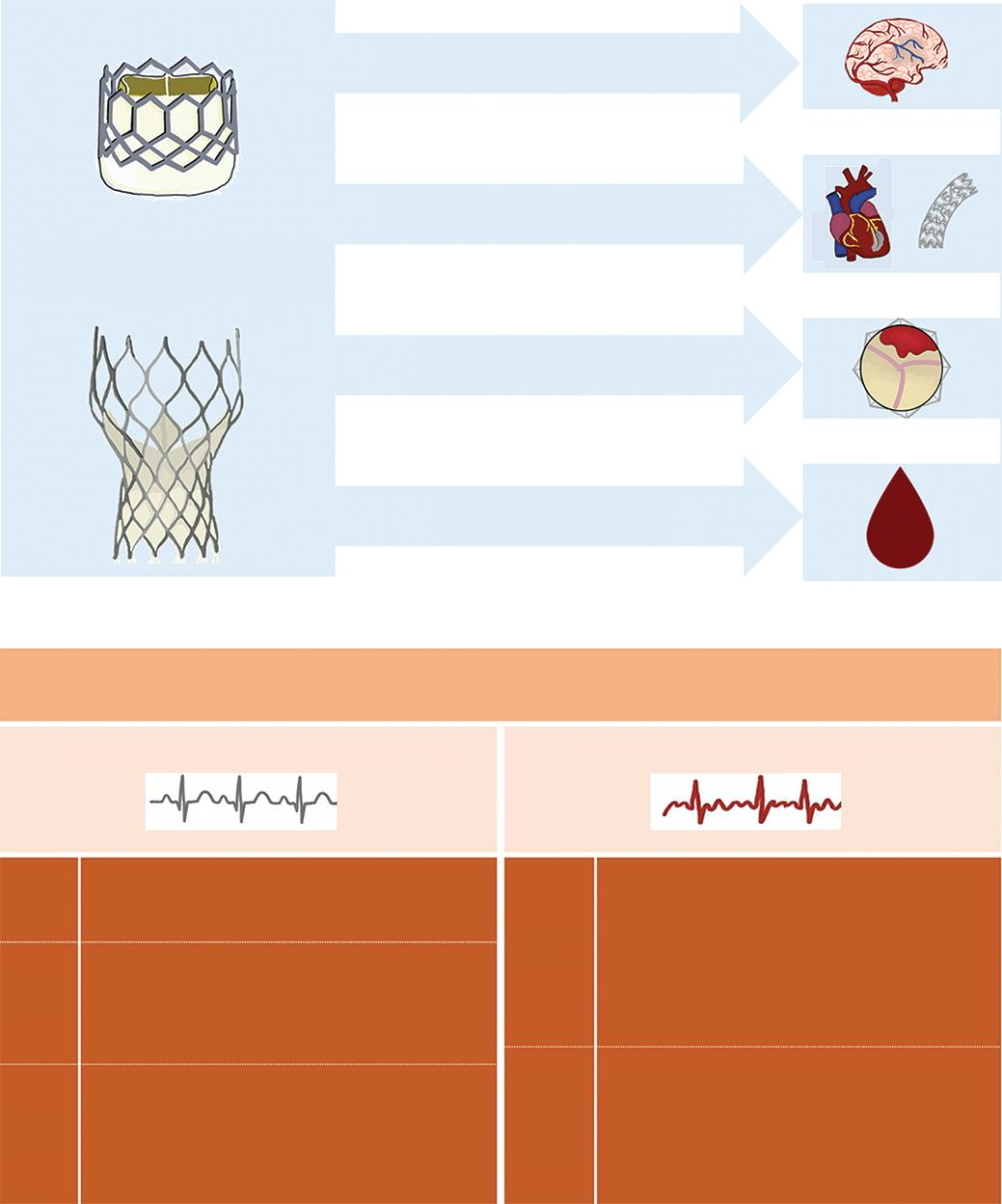 Page 56 of Antithrombotic Therapy After Transcatheter Aortic Valve Implantation