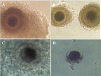 Page 48 of Maduración y fertilización in vitro de