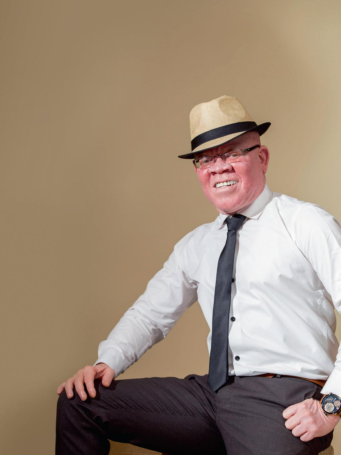 Page 10 of How Simba SC spokesman has shown heart of a lion in CHANGING ATTITUDES TOWARDS ALBINISM
