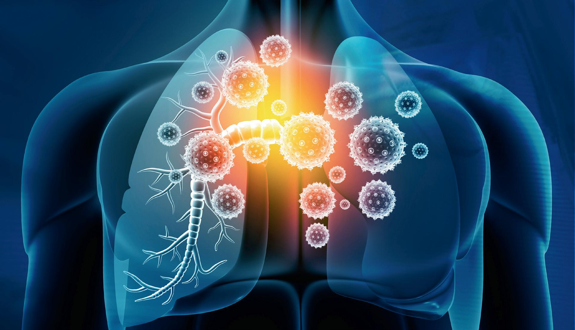 Page 24 of RESPIRATORY INFECTION RESPONSE — A CASE OF MISTAKEN IDENTITY