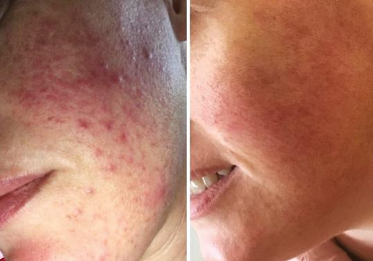 Page 46 of Treating Acne with Topicals