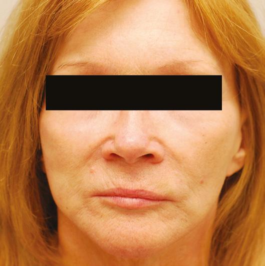 Page 40 of Understanding Collagen-stimulating Dermal Fillers