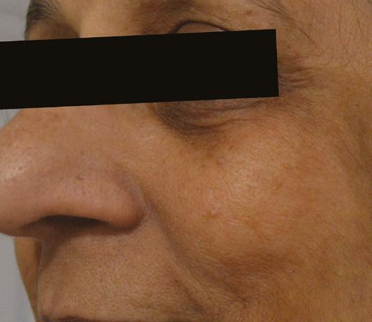Page 40 of Case Study: Ageing and Pigmentation