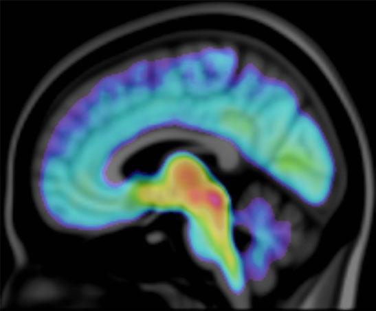 Page 36 of Hjärnans serotoninsystem påverkat vid autism