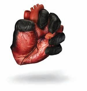 Page 30 of Dijabetes i srce