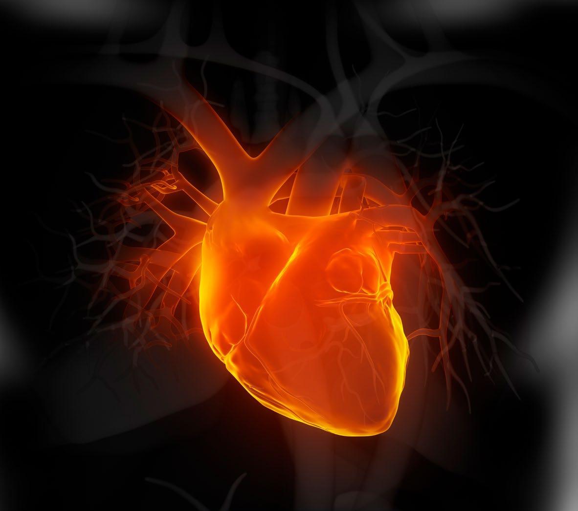 Page 28 of Avhandling visar att allvarlig blödning efter hjärtinfarkt är relativt frekvent förekommande men att hjärnblödning blivit ovanligare