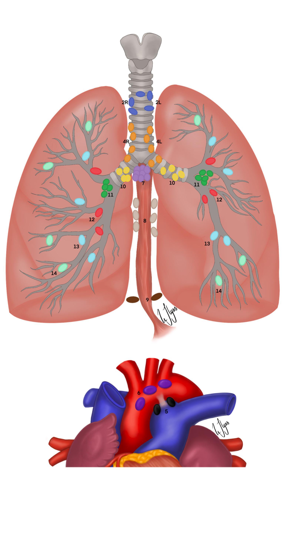 Page 30 of Lymfeknutehåndtering ved kirurgi for primær lungekreft, en teoretisk og praktisk tilnærming