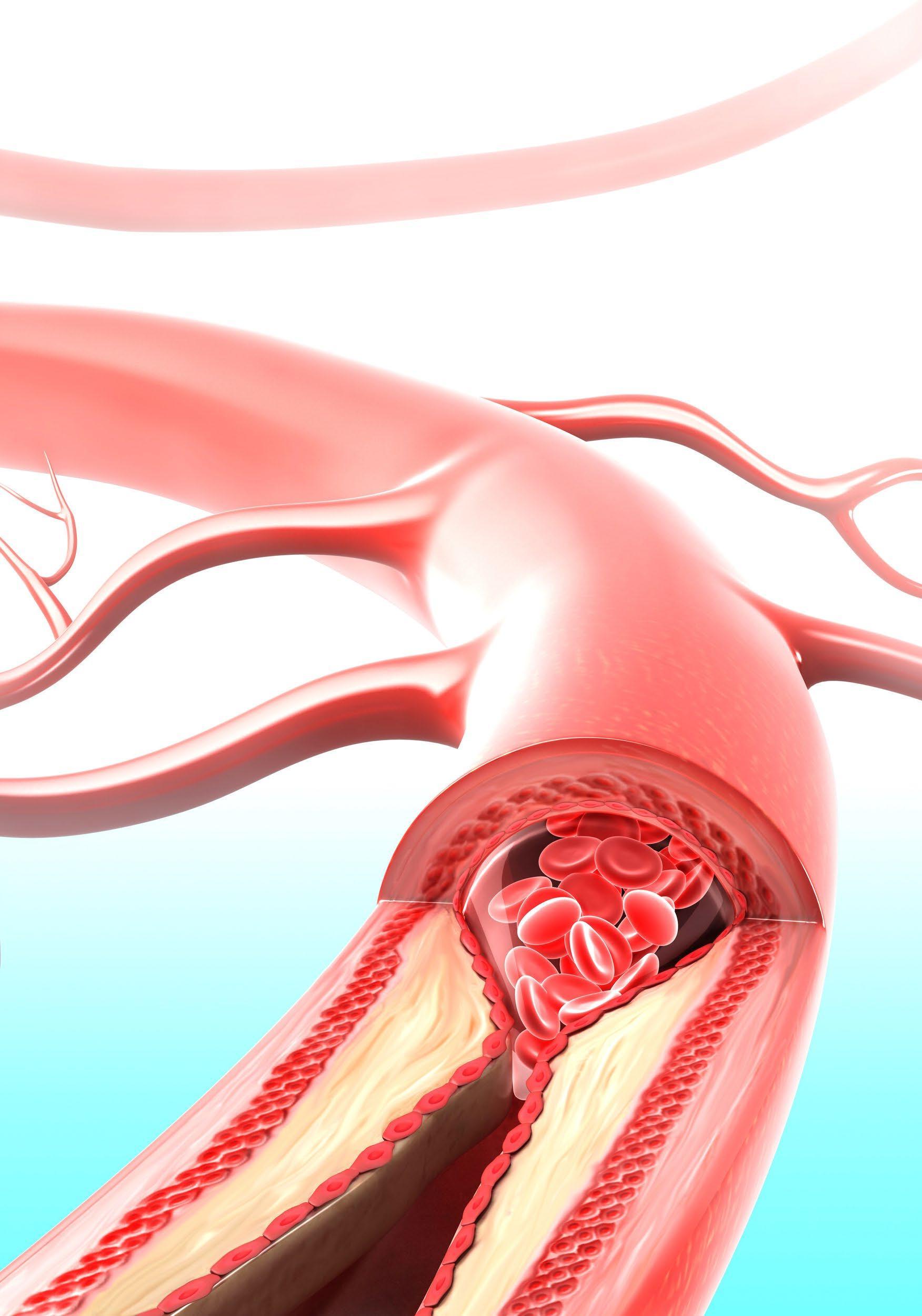Page 16 of Ny forskning om det goda kolesterolet kan ha hittat en bättre markör för hjärtkärlsjukdom