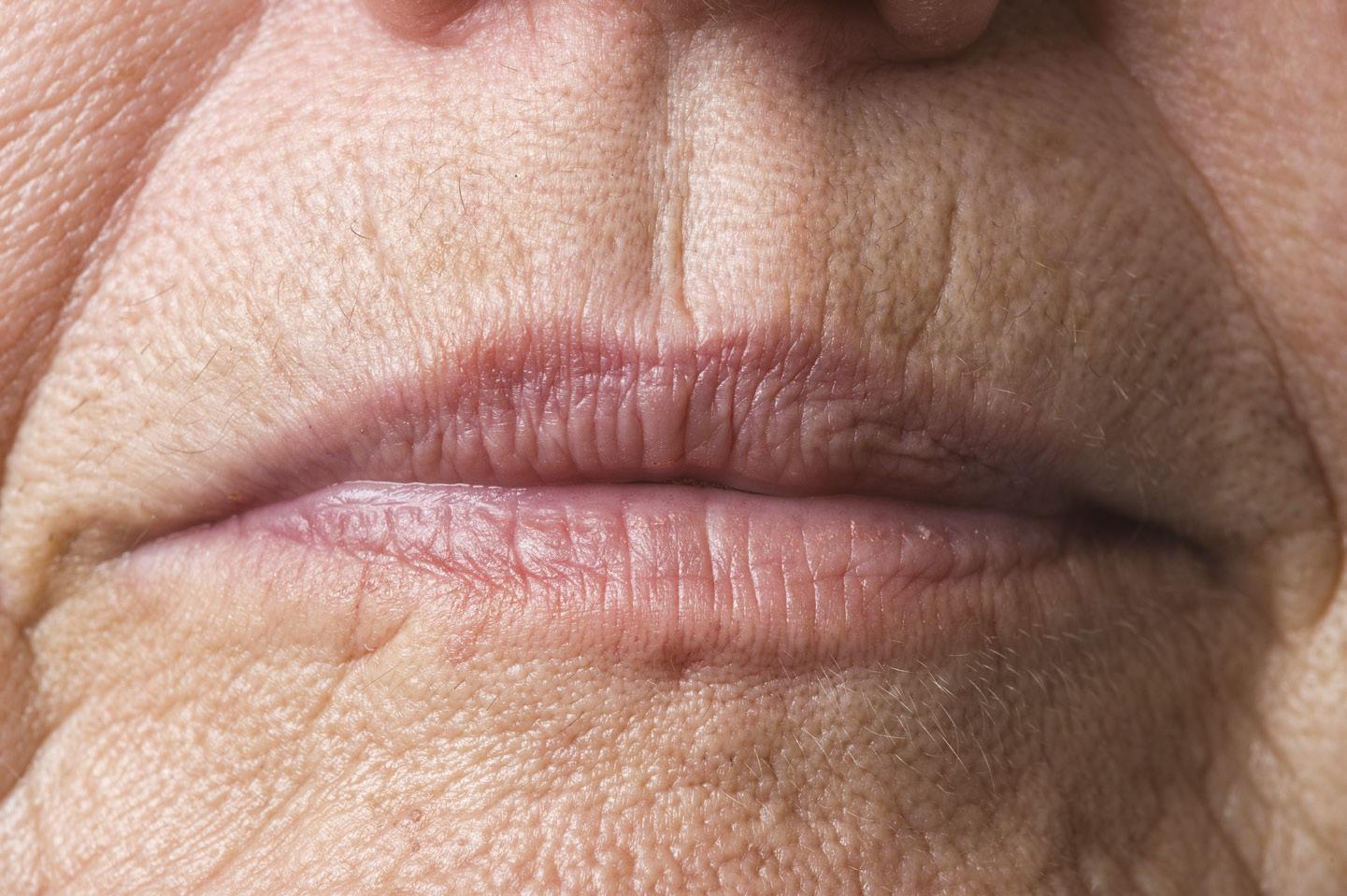 Page 34 of Treating Lip Lines