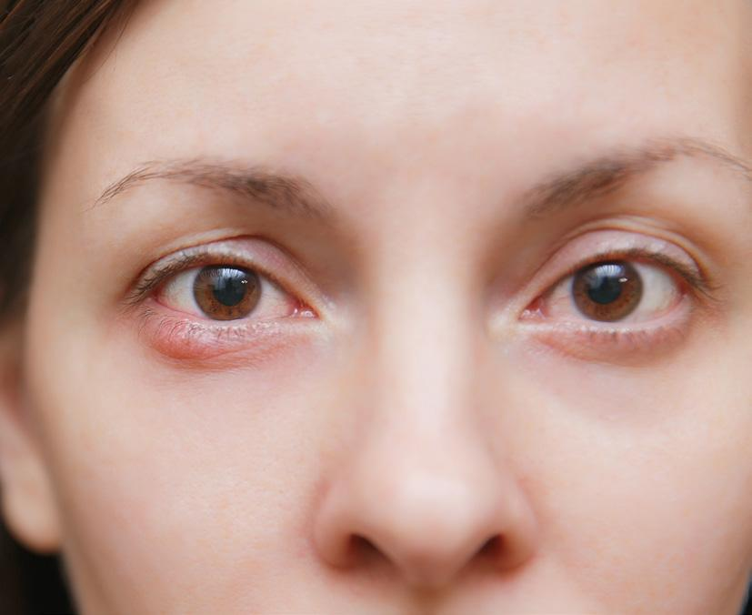 Page 29 of Caring for a Hordeolum Lesion (Eyelid Stye
