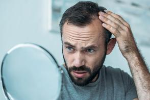 Page 16 of Hair Today: Coping with male pattern baldness