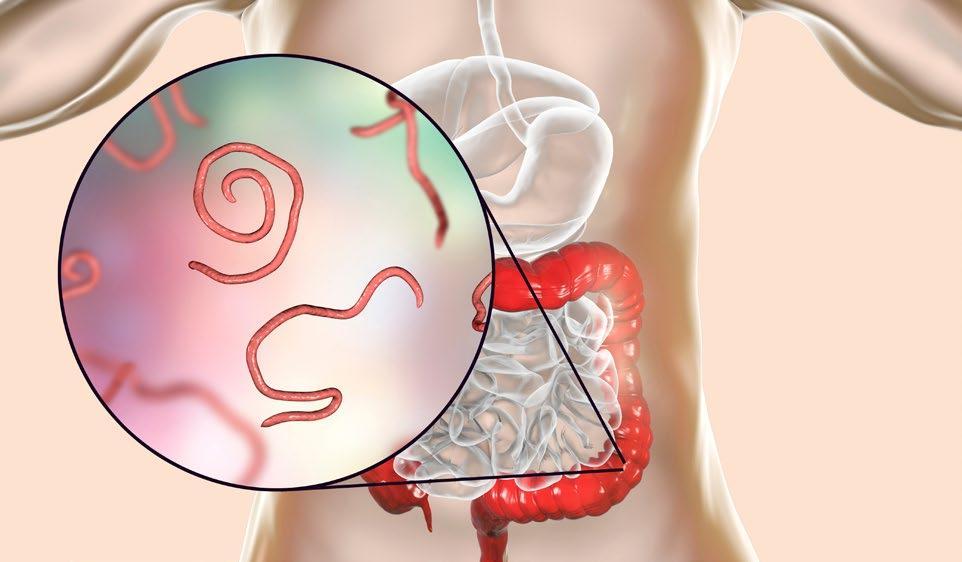 Page 38 of Enterobiasis: «gusanos» en el intestino