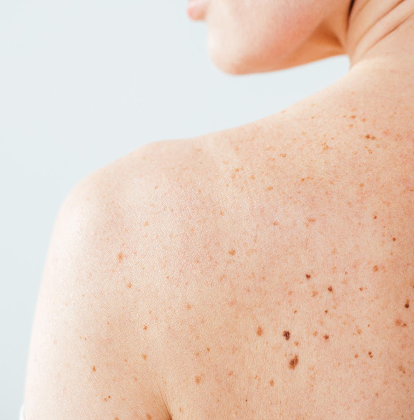 Page 96 of Cannabinoide und die Homöostase der Haut
