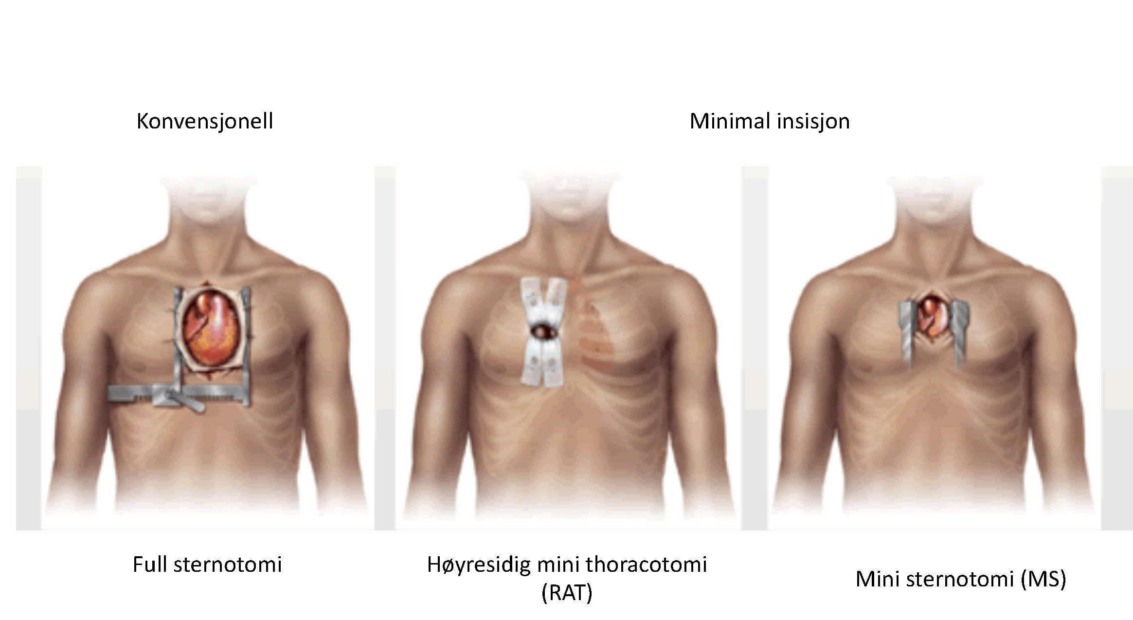 Page 30 of Minimalinvasiv aortaklaffoperasjon