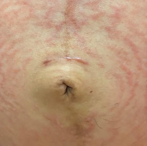 Page 28 of Breast Implant-Associated Anaplastic Large Cell Lymphoma: An Update