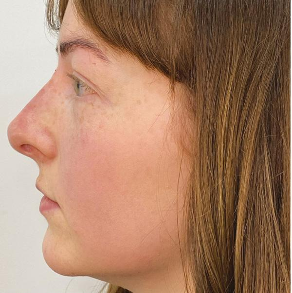 Page 40 of Advancing Your Non-surgical Rhinoplasty Results
