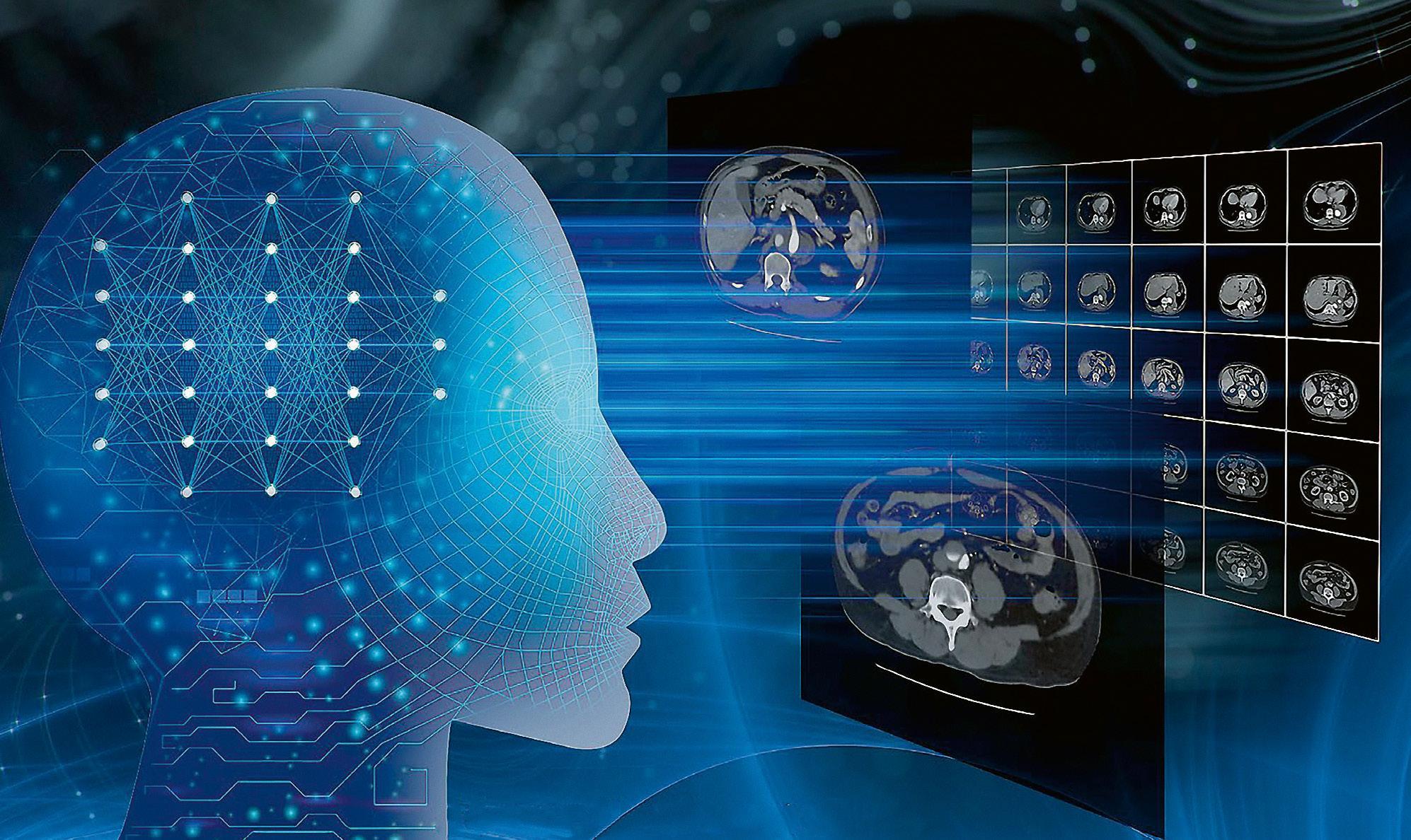 Page 38 of CT-Rekonstruktionstechnologie mit KI und Deep Learning