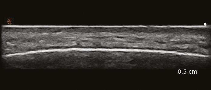 Page 54 of Introducing Ultrasound to your Clinic