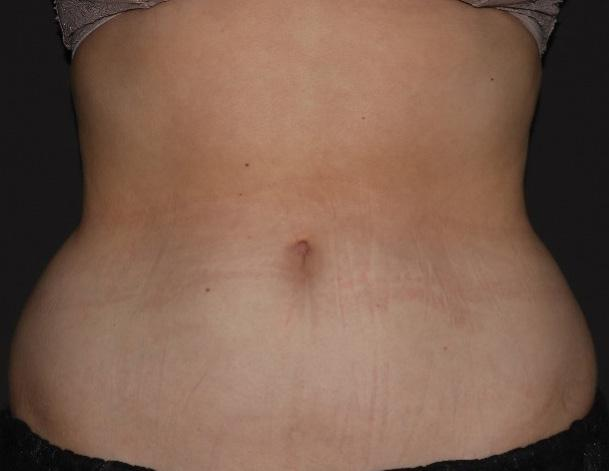 Page 32 of Treating the Abdomen with Cryolipolysis