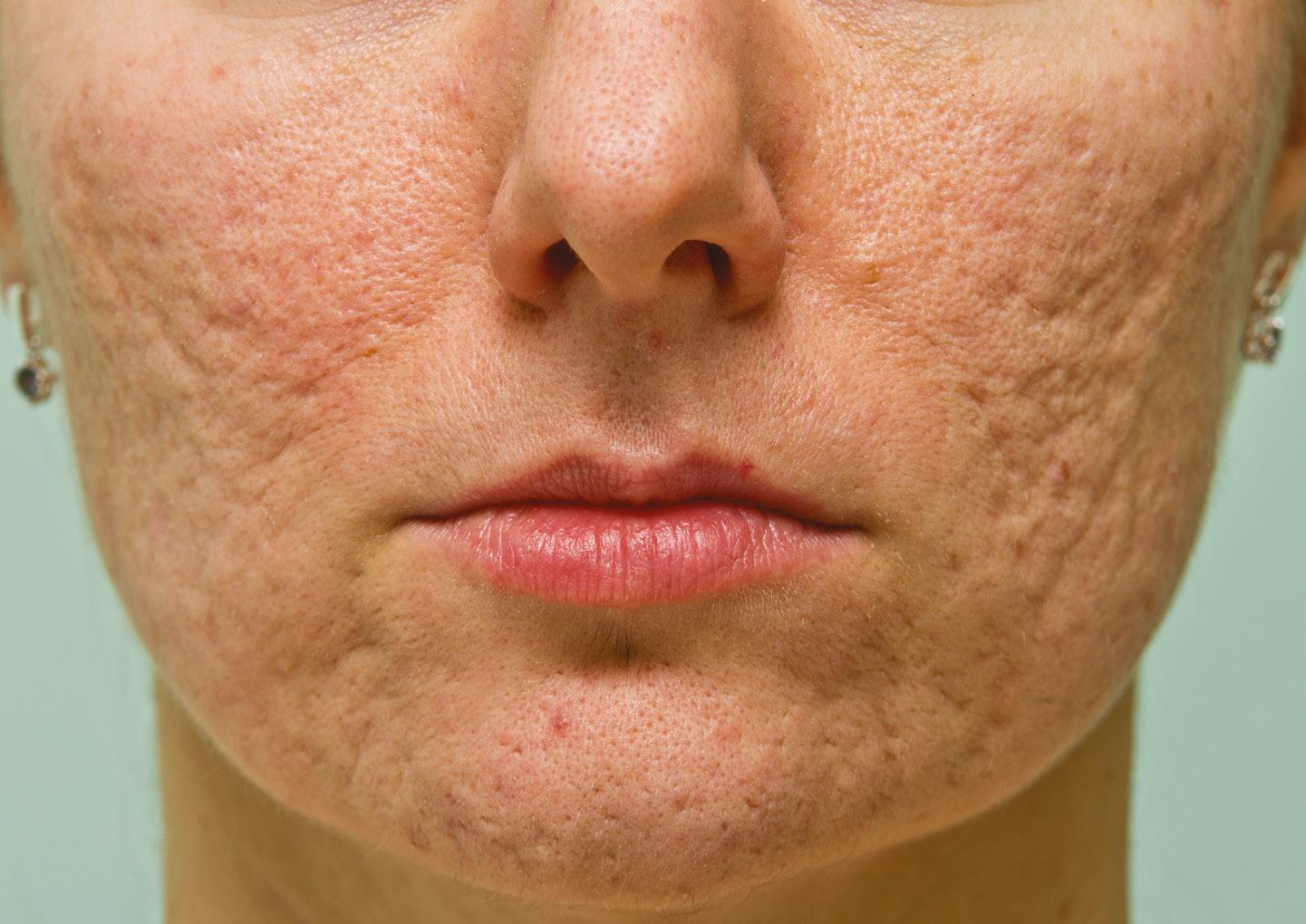 Page 20 of Special Feature: Addressing Acne Scars with Lasers