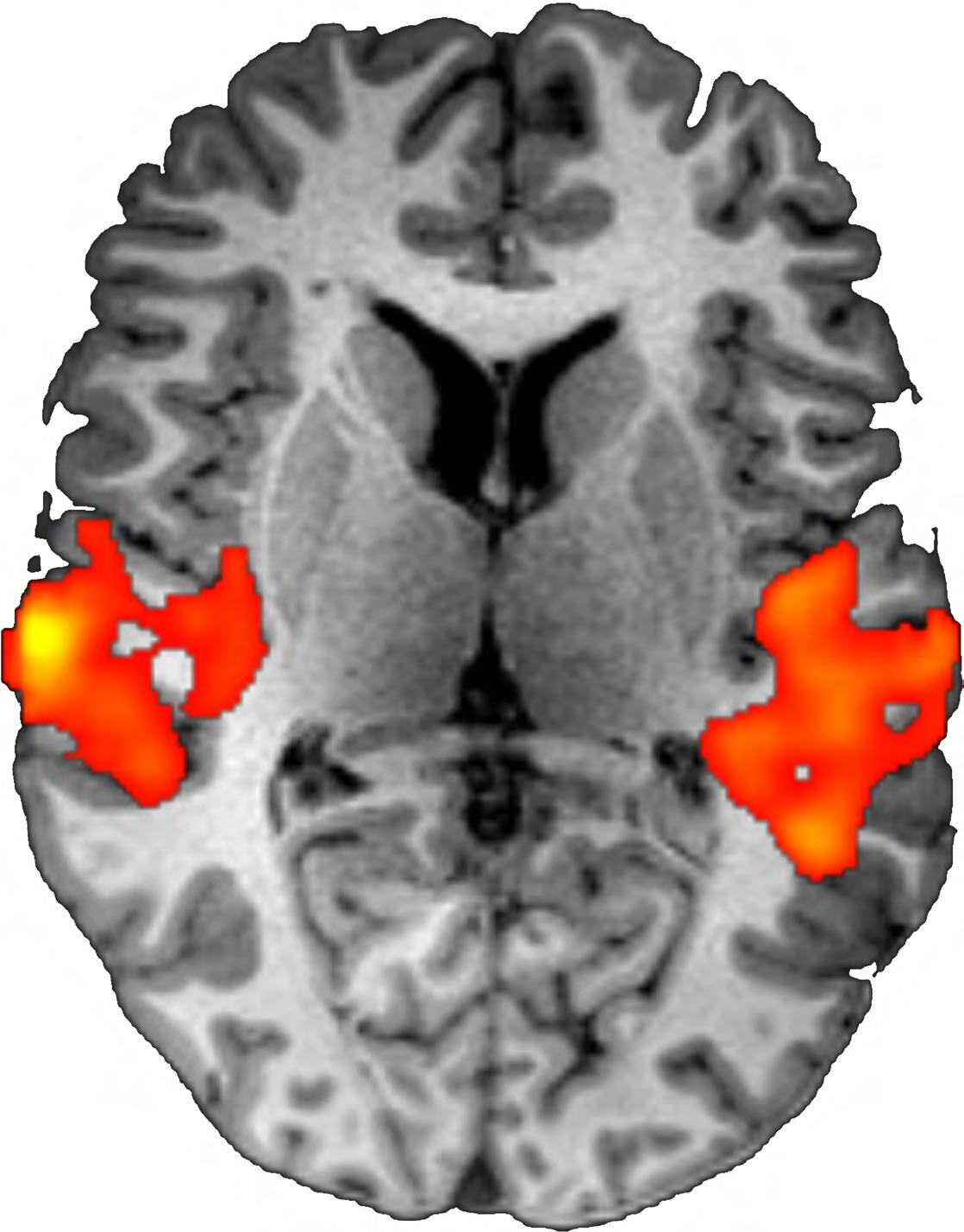 Page 48 of Functional MRI: Applications (Introduction)