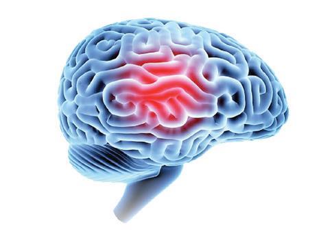 Page 4 of Traumatic Brain Injury (TBI)