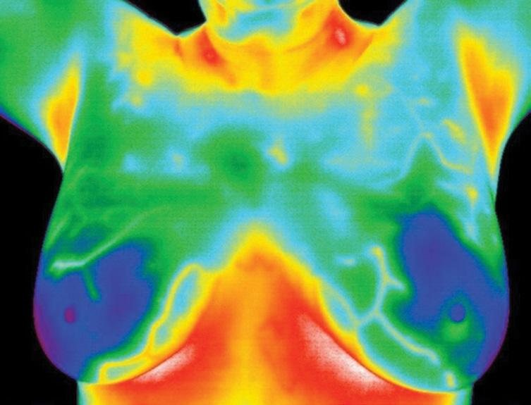Page 12 of MAMMOGRAPHY VERSUS THERMOGRAPHY